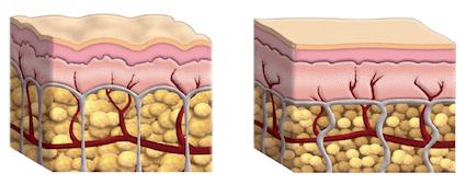 Cellulite Behandlung und die Behandlung von schlaffer Haut mit der Maderotherapie