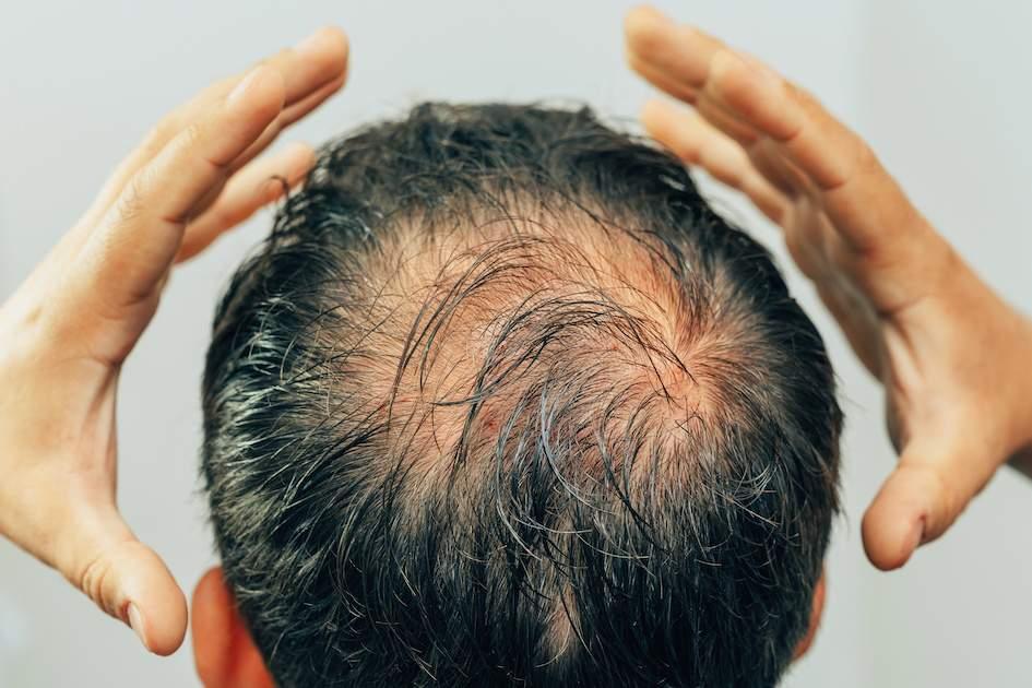 Microneedling der Kopfhaut mit einem Dermaroller oder Dermapen bei Haarausfall