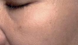 Hautbild nach der Behandlung mit dem Intense Flash Serum von Utsukusy