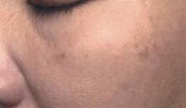 Hautbild vor der Behandlung mit dem Intense Flash Cocktail von Utsukusy
