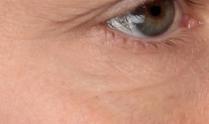 Hautbild am Auge nach der Behandlung mit dem Intense Flash Serum von Utsukusy
