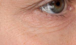 Hautbild am Auge vor der Behandlung mit dem Serum von Utsukusy