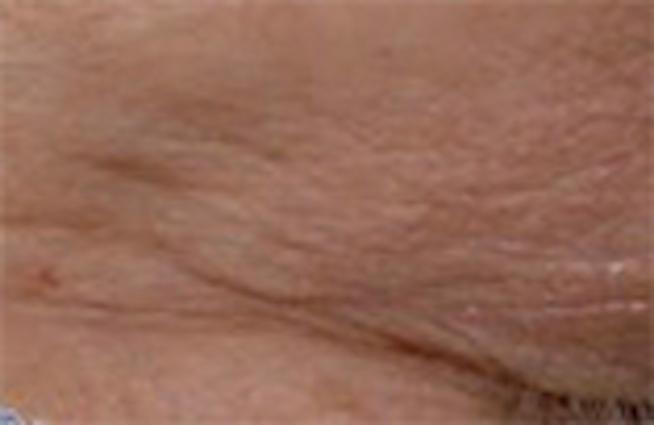 Hautbild nach der Behandlung mit dem Augen Lifting Serum von Utsukusy