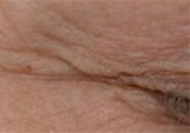 Hautbild vor der Behandlung mit dem Augen Lifting Serum von Utsukusy